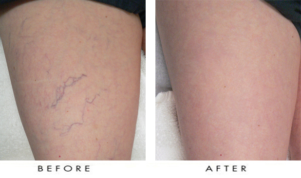 Laser Spider Vein Removal Before and After
