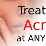 Treating Acne at Any Age