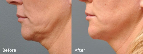 Ulthera-Neck-Before-&-After