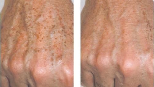 Hand Pigmentation