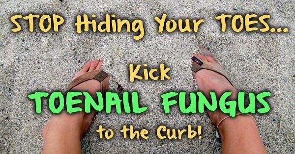 Kick Toenail Fungus to the Curb!