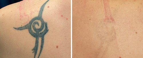 tattoo_removal_fotona3-web