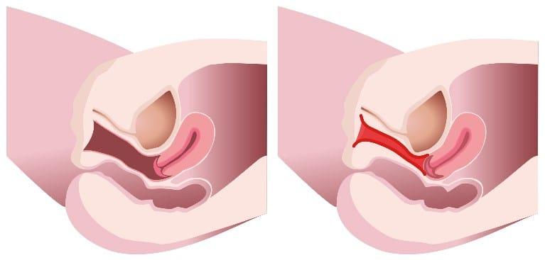 Vaginal Laxity